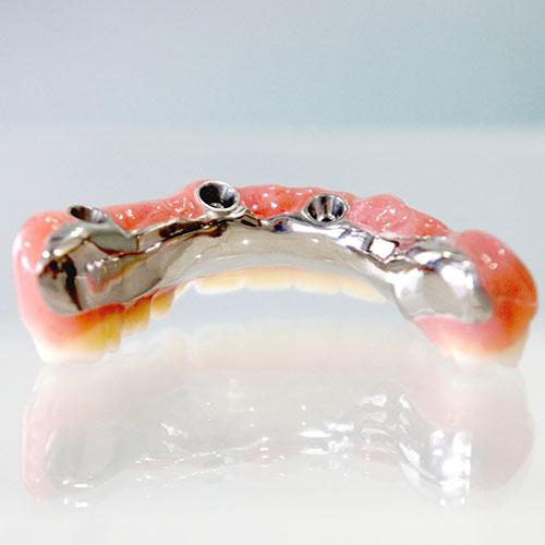 歯がすべてなくなってしまった場合の治療方法(全2回)